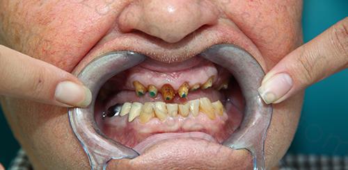 Пациент клиники z3 до протезирования зубов