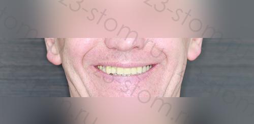 Пациент клиники z3 после протезирования зубов
